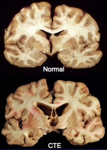 Normal-v-CTE-brain-courtesy-Ann-McKee